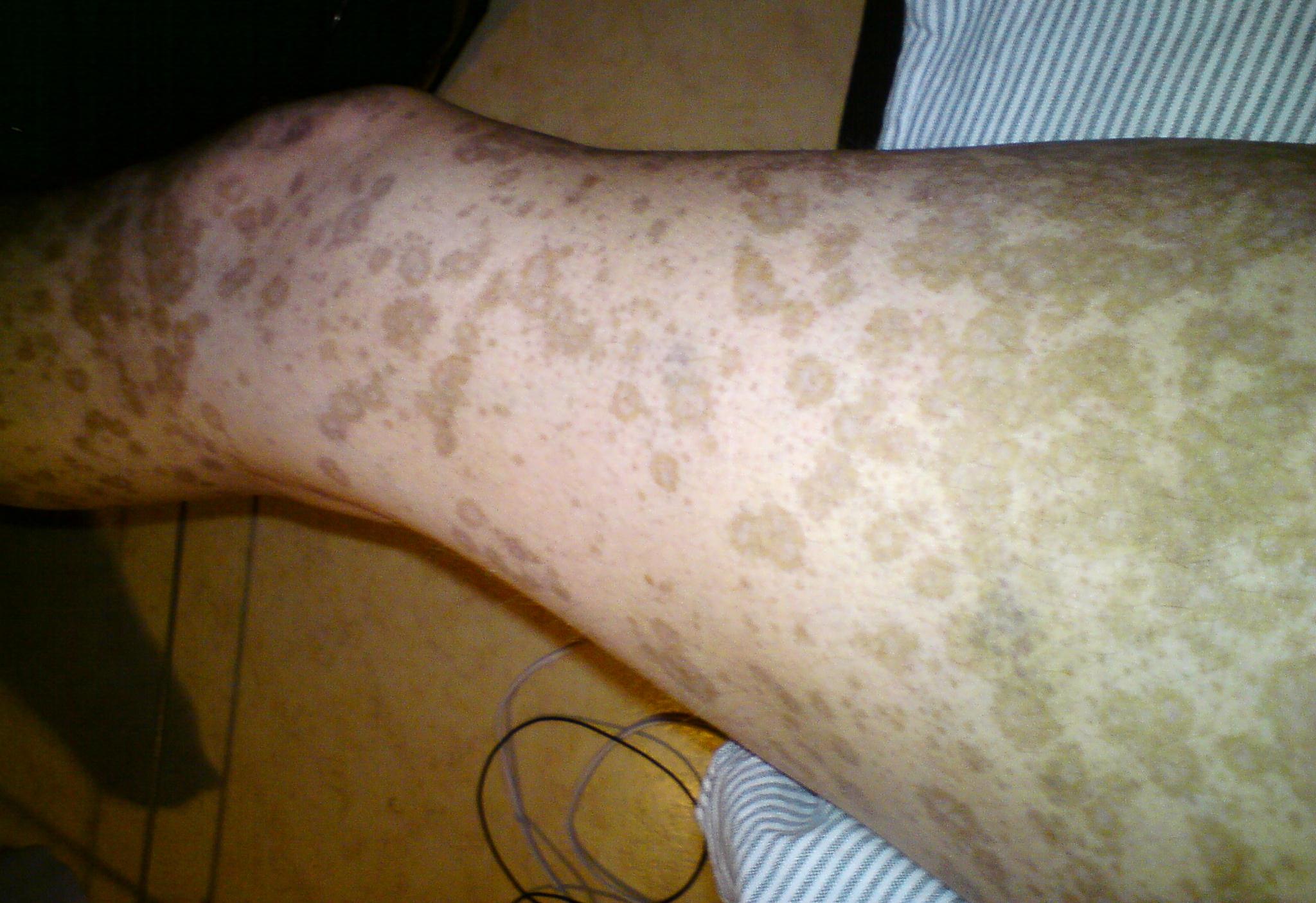 Muskelsvaghet i benen